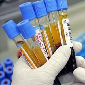 fragmentos-de-codigo-genetico-parecem-diferentes-no-sangue-de-pacientes-com-alzheimer-1375121348533_300x300